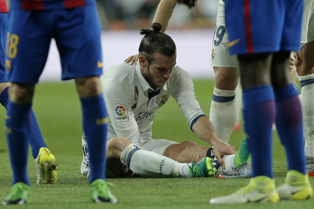 Bale y otros cracks de cristal que sufren constantes lesiones AP_1711371...