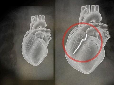 El colesterol es uno de los principales factores de riesgo para enfermed...