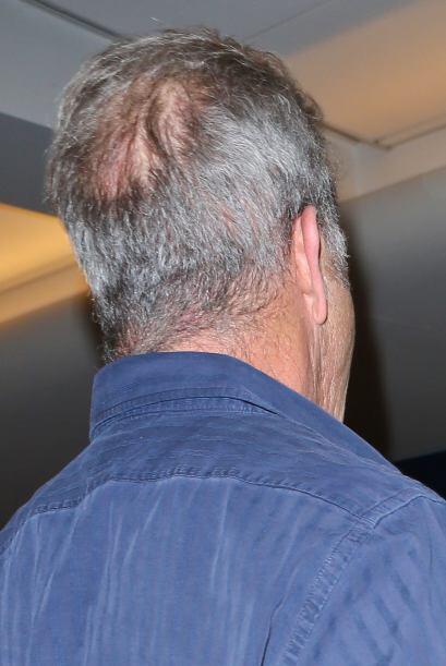 Mel tiene una calvicie bastante pronunciada atrás de su cabeza.