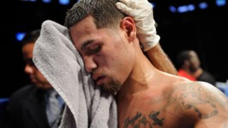 Michael 'Artista' Pérez derrotó en una guerra a Miguel Acosta.