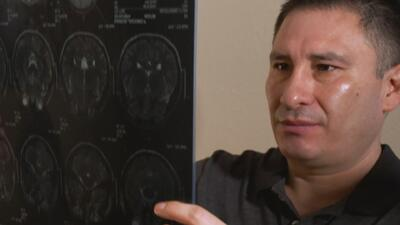 La conmovedora historia de un inmigrante mexicano paciente con cisticercosis cerebral