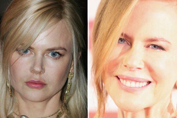 Nicole Kidman deseaba ser una muñequita de porcelana y con tanto exceso...