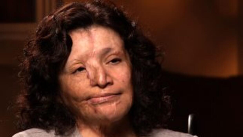 Esperanza Medina fue rociada con ácido por orden de una esposa demasiado...