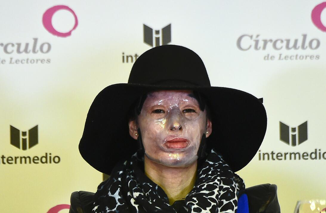 Natalia Ponce De León, quien fue agredida con ácido y que le dejó deform...