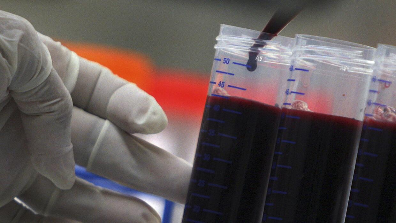 En 2008, investigadores suizos fueron los primeros en anunciar que las p...