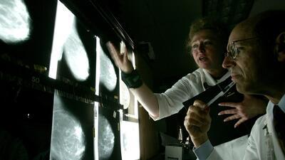 Pacientes con cáncer de mama común podrán evitar las quimioterapias durante sus tratamientos