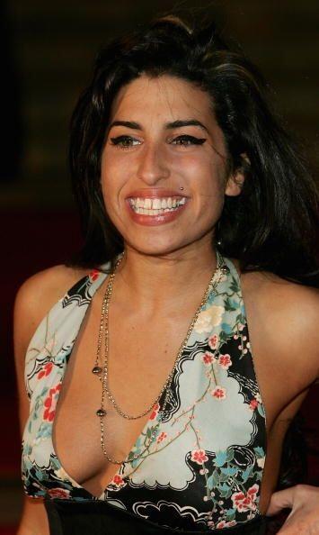 Un caso extremo de dentadura fea era la de Amy Winehouse. Muchos opinan...