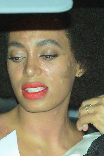 ¡Pobre Solange! Nadie quiere tenerni ser vista con el rostro as&ia...