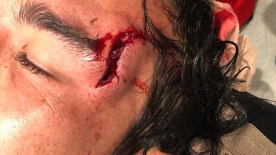 Juan Pablo Vigón resultó con impresionante herida tras choque de cabeza con Achillier