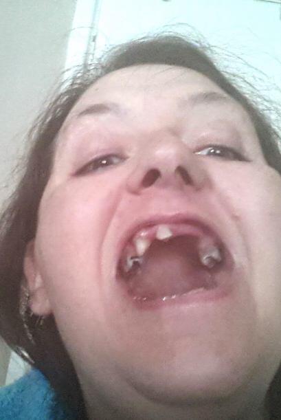 Lynda contó que durante su infancia, en su escuela había un dentista que...