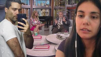 Alejandro García muestra supuestas heridas hechas por Eileen Moreno que a Raúl y Lili les parecen rarísimas