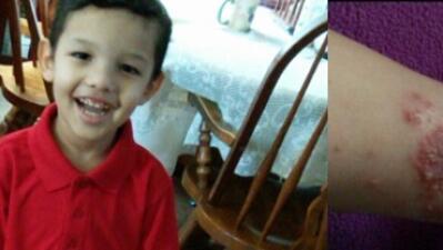 Enfermedad de piel inmoviliza por dolor a niño de 4 años king.jpg