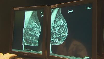 Especialista aclara dudas sobre estudio que revela avances en tratamientos contra el cáncer de mama