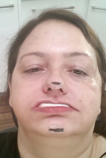 Cada tratamiento para arreglar su dentadura era sólo un trauma más.
