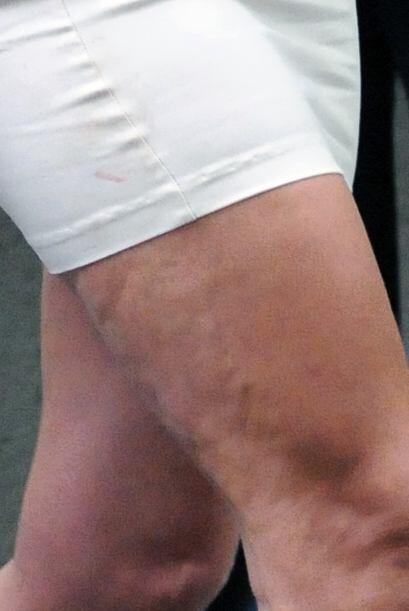 Por ahí debe de haber una terapia para su flácida piel.