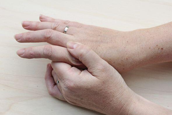 Si notas una sequedad más severa en uñas y piel se puede deber a un prob...