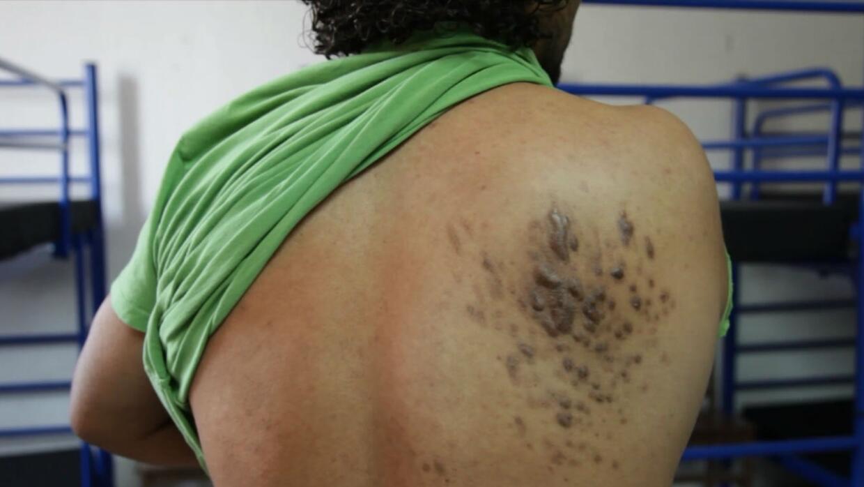 Un migrante hondureño fue herido con una escopeta. Cientos de perdigones...