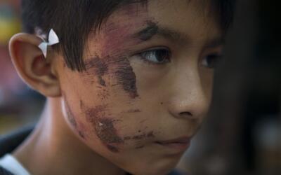 Josué Tolentino Gómez, de 11 años, es un sobrevivie...