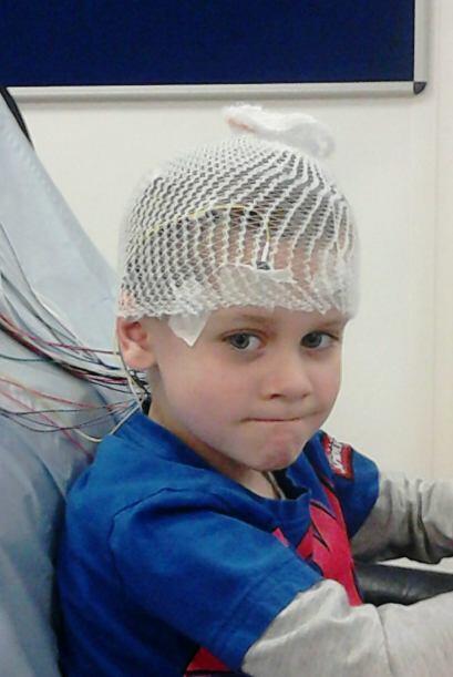 Sus padres le encontraron un bulto en la parte frontal de la cabeza y do...