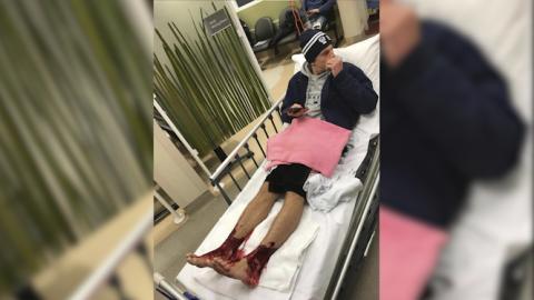 Un joven australiano herido en sus pies y tobillos luego de sumergirse e...