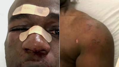 Le arrojó agua caliente y lo golpeó hasta romperle la nariz, así fue el ataque de un preso a un agente
