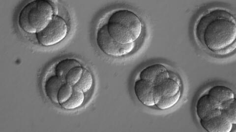 Mediante una técnica llamada CRISPR-Cas9, científicos logr...